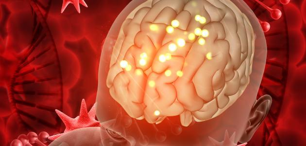 أعراض سرطان المخ الحميد