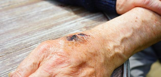 كيفية إزالة آثار الحروق من اليد