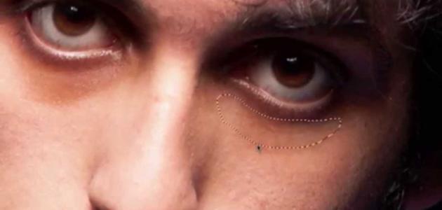 سواد تحت العين