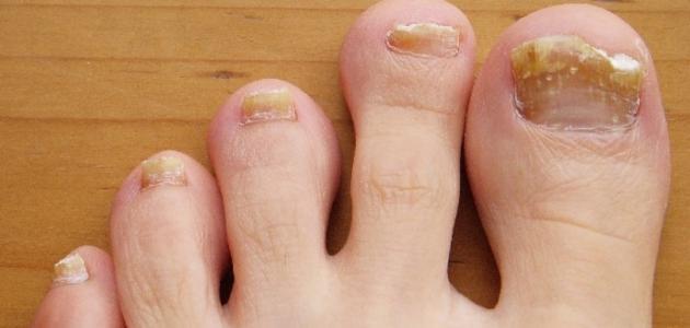 علاج فطريات الأظافر طبيعياً