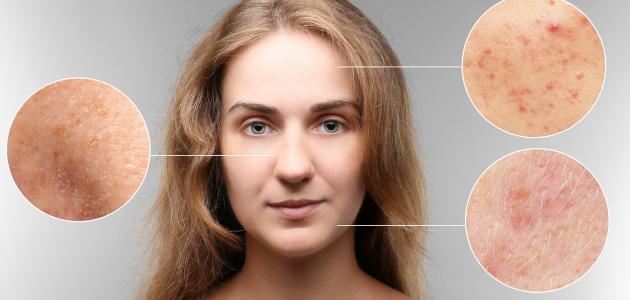 كيفية التخلص من بقع حب الشباب في الوجه