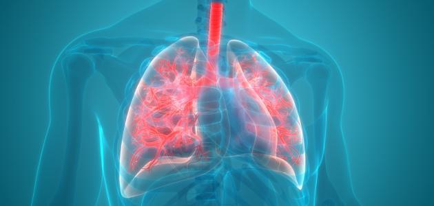 التهاب ذات الرئة الحاد