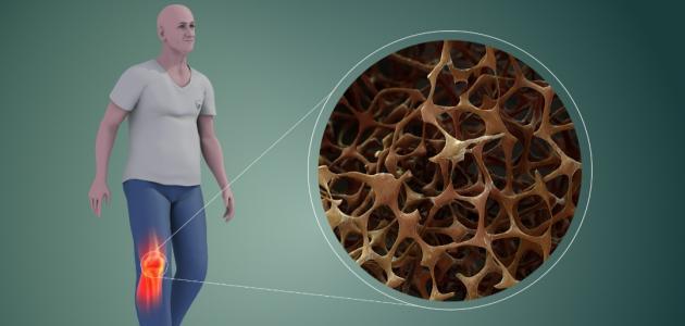 كيفية التخلص من هشاشة العظام