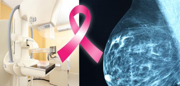 العلاج الإشعاعى لسرطان الثدي
