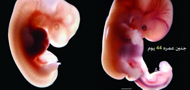 حجم الجنين في الشهر الاول
