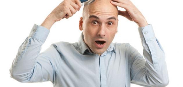 تساقط الشعر للرجال