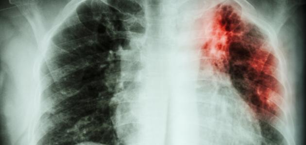 أسباب تليف الرئة