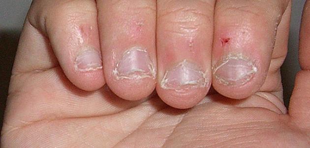 أعراض نقص هرمون الغدة الجار درقية