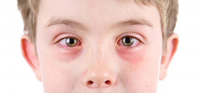 التهاب ملتحمة العين عند الأطفال