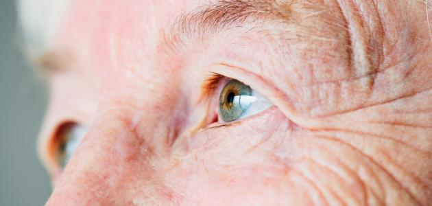 أمراض بؤبؤ العين