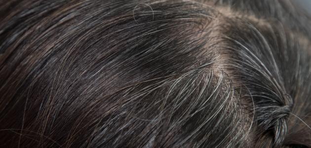 كيفية التخلص من الشعر الأبيض بدون صبغة
