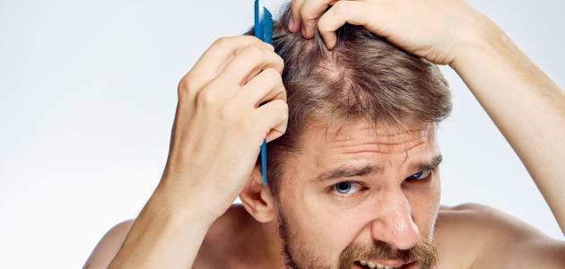 طريقة إعادة إنبات الشعر للرجال