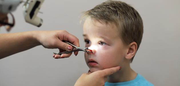 أعراض وجود اللحمية عند الأطفال