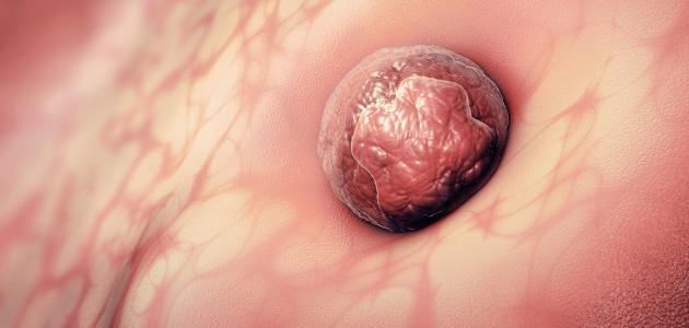 أعراض زرع البويضة في الرحم