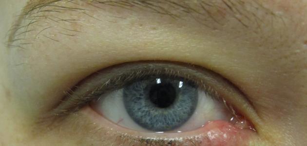 أسباب وجود كيس دهني في العين