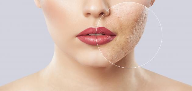 كيفية التخلص من المسامات الواسعة في الوجه
