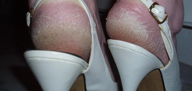 كيفية التخلص من شقوق القدمين