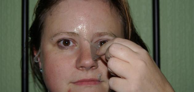 كيفية التخلص من قشرة الوجه
