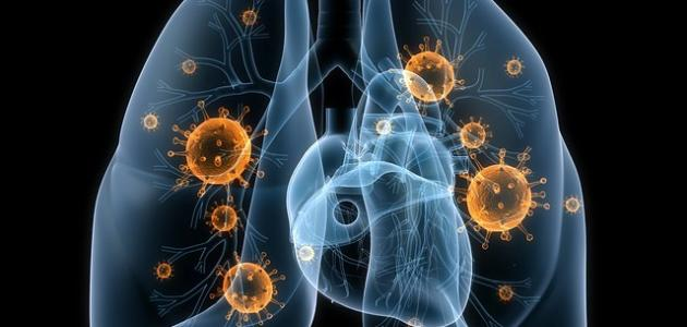 كيفية علاج سرطان الرئة