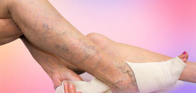 أضرار جراحة دوالي الساقين
