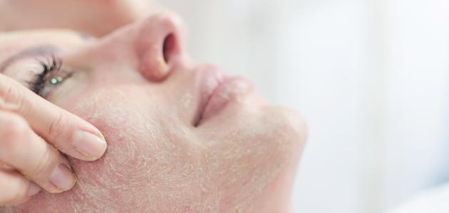كيفية التخلص من القشرة في الوجه