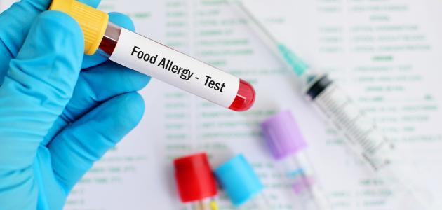 ما هو تحليل حساسية الطعام