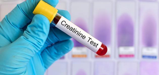 ما هو تحليل كرياتينين
