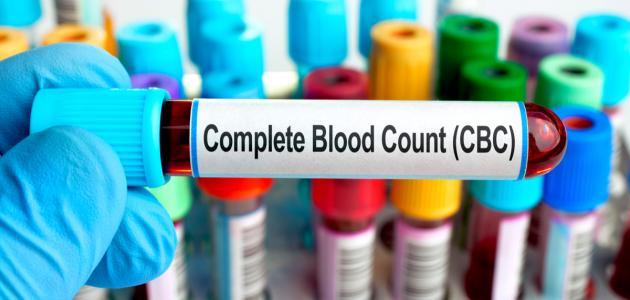 ما هو تحليل الدم cbc