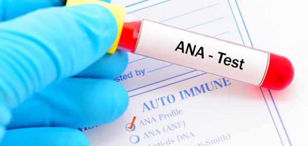 ما هو تحليل الدم ana