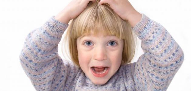 كيف نعالج القمل عند الاطفال