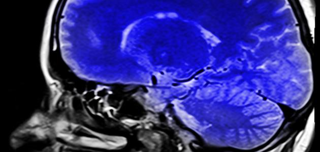ما سبب جلطة المخ