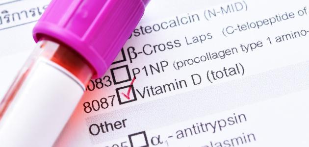 ما هو تحليل فيتامين d3