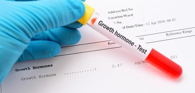 ما هو تحليل هرمون النمو