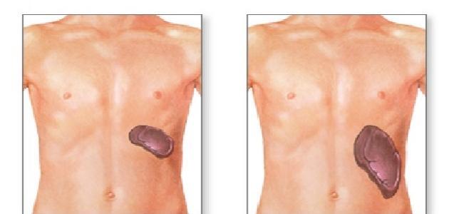 ما سبب تضخم الكبد