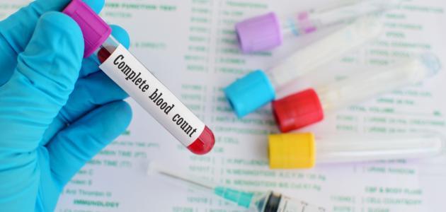 ما هو تحليل فقر الدم