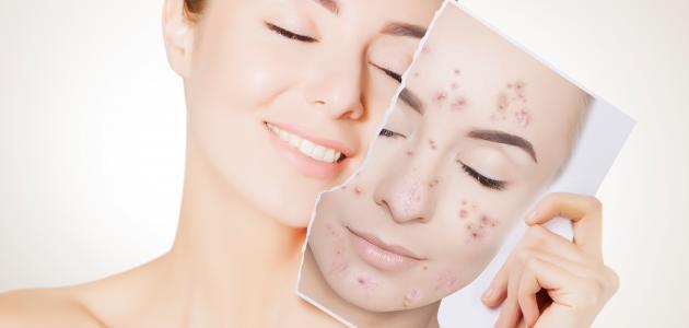 كيفية التخلص من الرؤوس السوداء على الوجه والأنف بسرعة