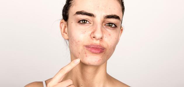 كيفية القضاء على بثور الوجه