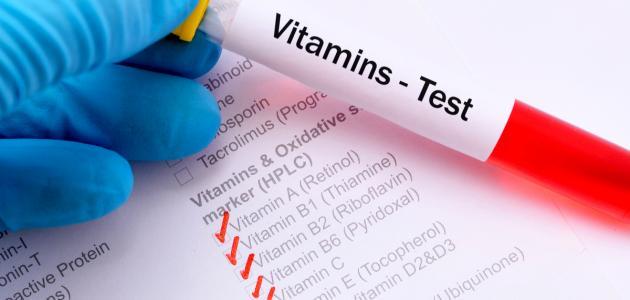 ما هو تحليل الفيتامينات
