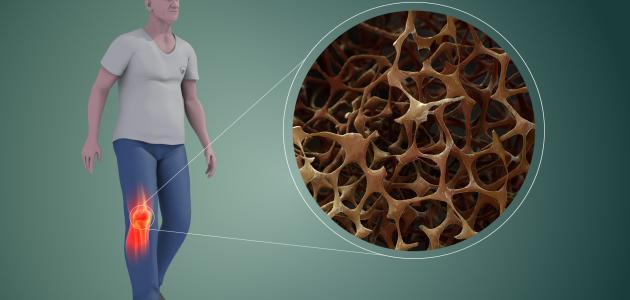 كيفية علاج هشاشة العظام