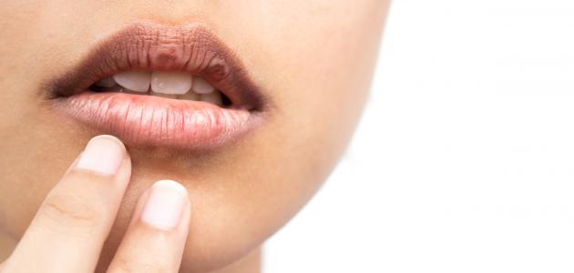 ما علاج جفاف الفم
