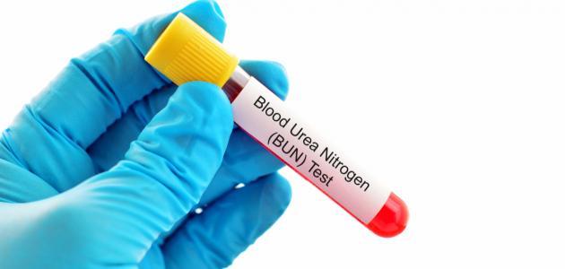 ما هو تحليل اليوريا في الدم