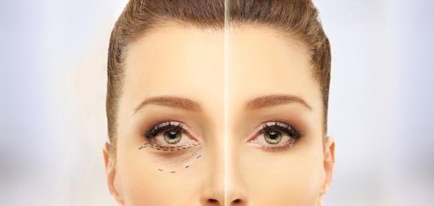كيفية التخلص من الخطوط تحت العين