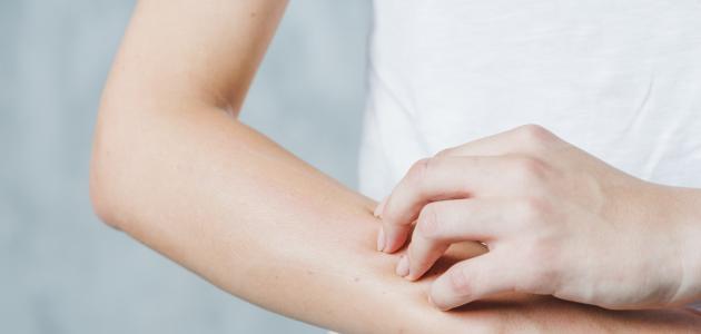 كيفية علاج حساسية السلفا