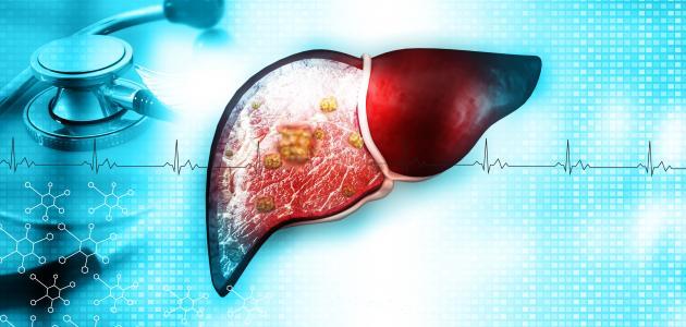 أضرار ارتفاع وظائف الكبد