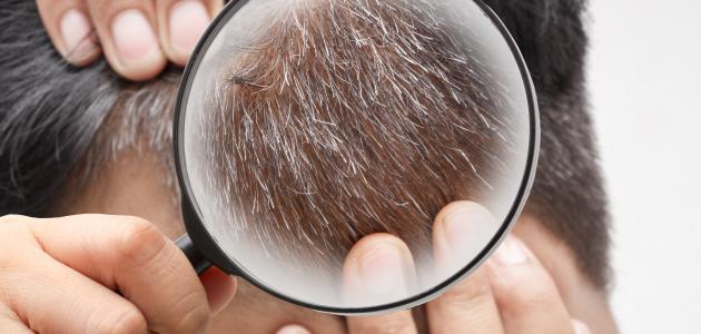كيفية منع ظهور الشعر الأبيض