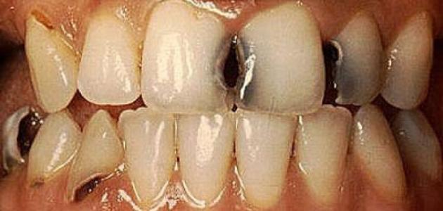 تعريف تسوس الأسنان