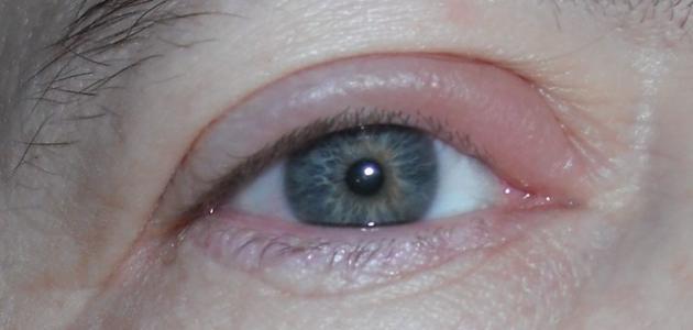 ما أسباب انتفاخ الجفن العلوي للعين