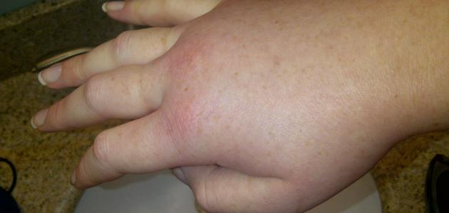 Why swollen feet and hands