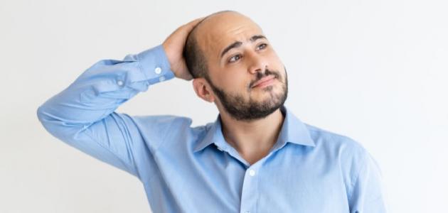 كيفية منع تساقط الشعر للرجال