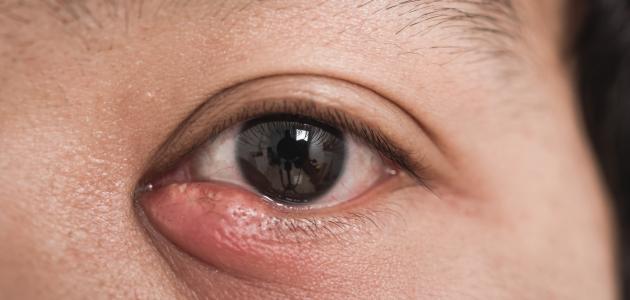 التهاب بكتيري في العين